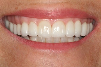 Full upper arch of veneers after 244071