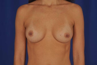 39 year-old woman desired breast implants after 634063