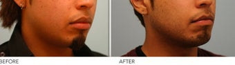 Upper and Lower Lip Reduction after 333433