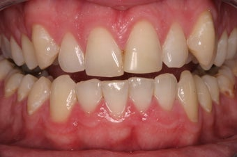porcelain crowns before 330389