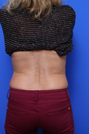 CoolSculpting  before 621299