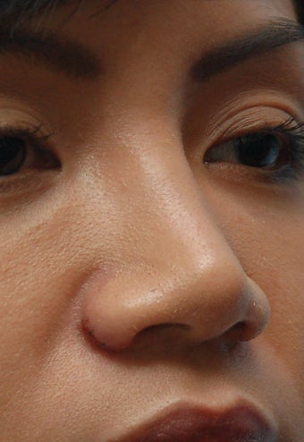 Non-Surgical Rhinoplasty after 91082
