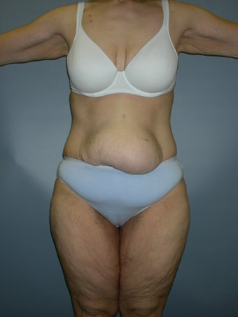 Tummy Tuck (Abdominoplasty) before 194871