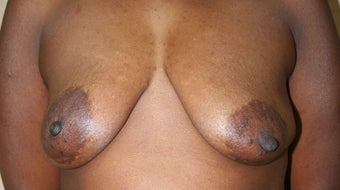 Breast Reconstruction before 517492