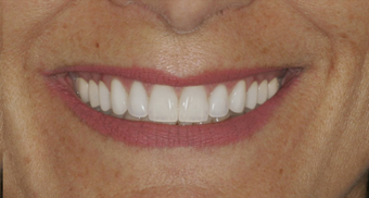 Smile makeover after 478964