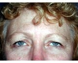Eye Lid Lift Surgery (Blepharoplasty) before 155478