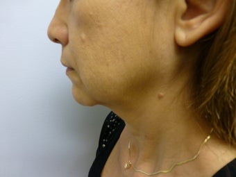 Face and Neck Lift before 625563