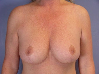 Breast Lift after 321468