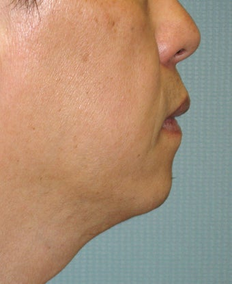 Chin Augmentation with Liposuction Neck before 365433
