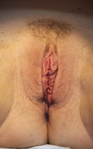 Labiaplasty after 503788