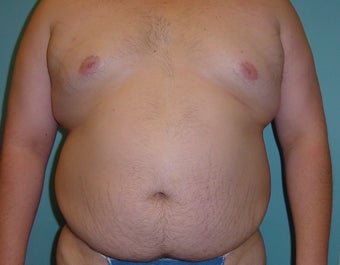 Male liposuction/liposculpture before 314976