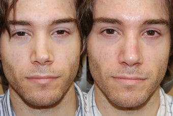 Non-Surgical Rhinoplasty with Silikon-1000 for permanent results. before 216825