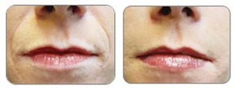 Before and after Restylane around mouth before 6289