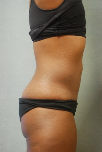 SmartLipo Abs & Love Handles  after 356690