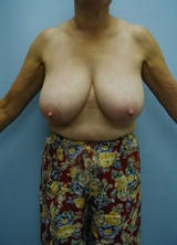 Breast Reduction Surgery (No Implants) before 124962