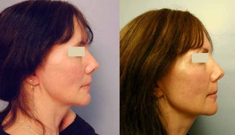 Sculptra treatments before 125340