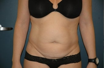 Tummy tuck before 362027