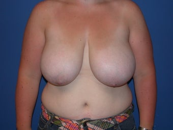 Breast reduction before 197338