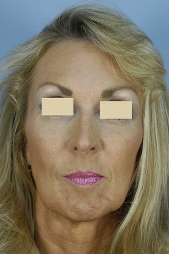Qt Mini-Facelift with chin augmentation before 163550