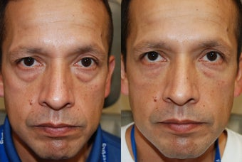 Lower eyelid and cheek rejuvenation with Silikon-1000 before 215265