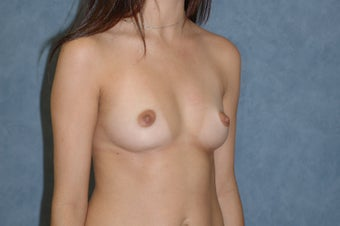 Breast augmentation before 389532