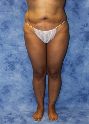 Liposuction and Fat Injection before 614612