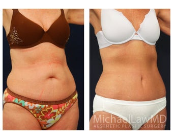 Abdominoplasty - Tummy Tuck after 396080