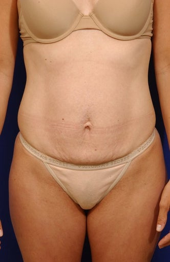 Abdominoplasty with liposculpture of abs and flanks
