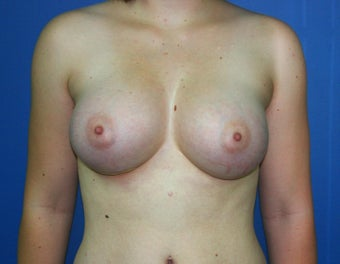 Breast Augmentation after 578454