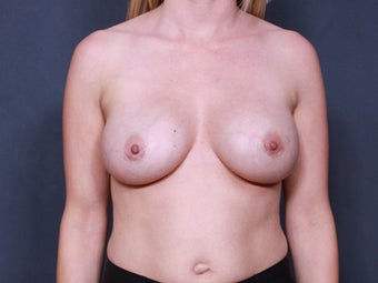 Breast Implant Revision after 461868