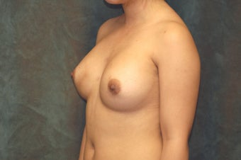 Women's Breast Augmentation: Redo 553985