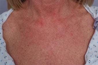 Laser treatment to Chest after 253107