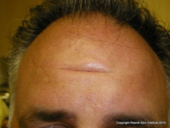 Forehead scar revision with simple excision before 252793