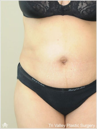Liposuction after 420931