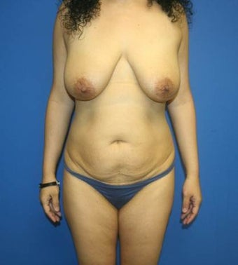 Mommy makeover, Breast Implants, Breast Lift, Tummy Tuck, Liposuction before 402388