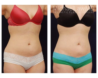 Liposuction after 391813