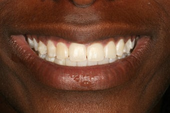 Invisalign after 416804