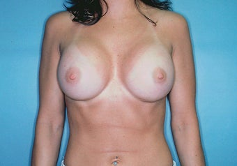Breast Augmentation with High Profile Saline Implants after 261531