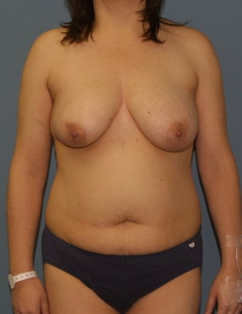 Mommy Makeover Breast lift and tummy tuck before 528659