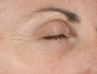Ulthera Laser Skin Tightening before 346273