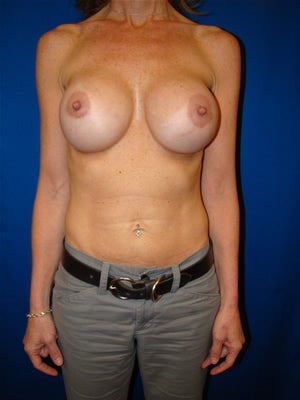 Revisionary Breast Surgery before 100710