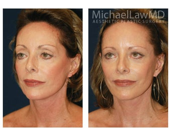 Cheek Augmentation before 415259