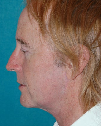 Facelift, brow and eyelid lifts after 118267