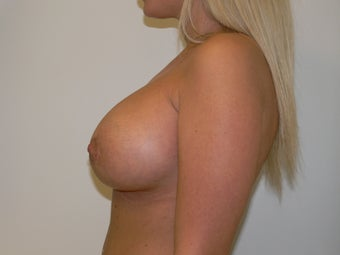 Breast Augmentation after 613588