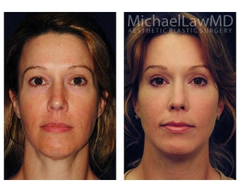 Chin Liposuction before 395359