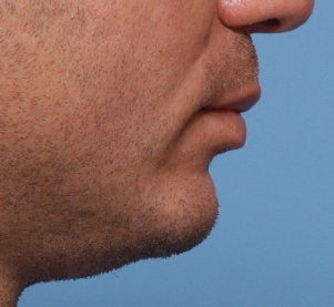 Chin Augmentation 521701