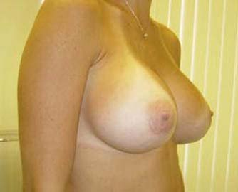 Breast Augmentation  after 131652
