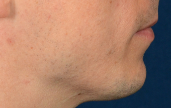 Chin Implant before 555167