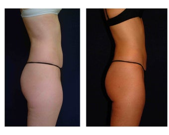 Liposuction before 286692