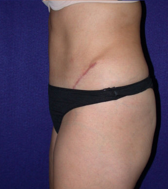 Tummy Tuck (abdominoplasty) 208480